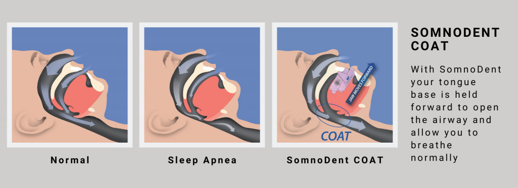 SomnoDent COAT